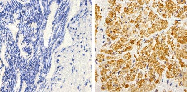 K-Ras Antibody (415700) in Immunohistochemistry (Paraffin)