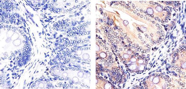 SMAD7 Antibody (42-0400) in Immunohistochemistry (Paraffin)