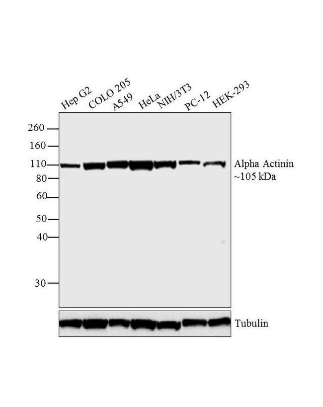 alpha Actinin 4 Antibody (42-1400) in Western Blot