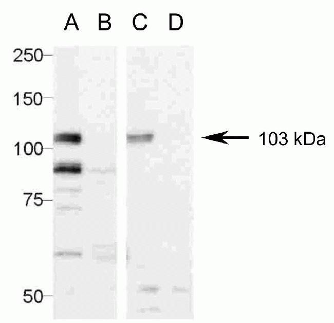 Pannexin 2 Antibody (42-2800) in Western Blot