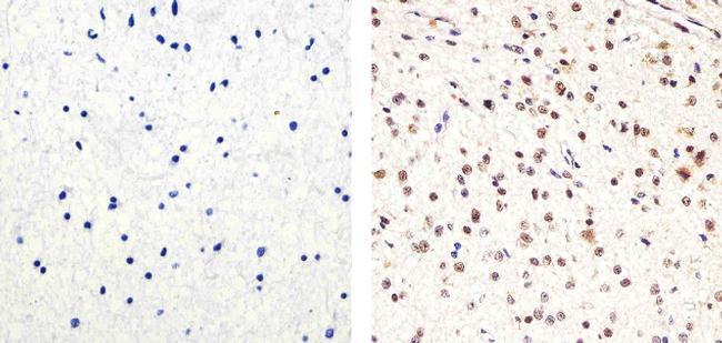 PARP Antibody (436400) in Immunohistochemistry (Paraffin)