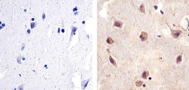 SMAD2 Antibody (436500) in Immunohistochemistry (Paraffin)