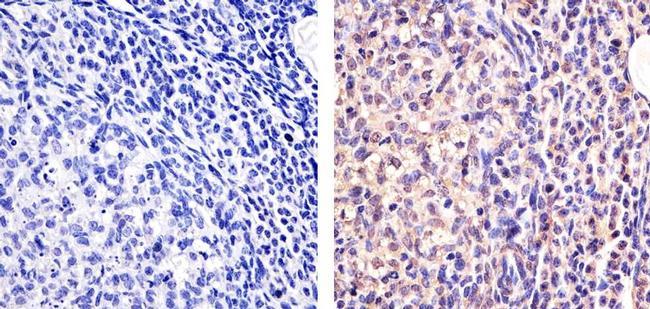 Galectin 1 Antibody (43-7400) in Immunohistochemistry (Paraffin)