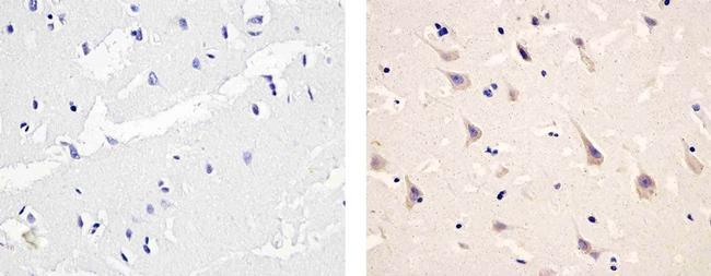 Phospho-PDGFRA (Tyr754) Antibody (441008G) in Immunohistochemistry (Paraffin)