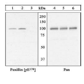 Phospho-Paxillin (Ser178) Antibody (44-1026G) in Western Blot