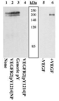 Phospho-VEGF Receptor 2 (Tyr1214) Antibody (44-1052) in Western Blot