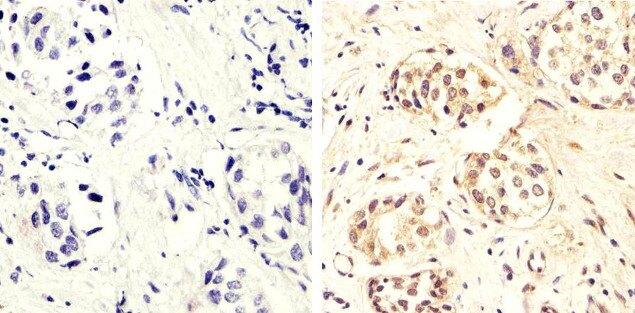 Phospho-PTEN (Ser370) Antibody (44-1060G) in Immunohistochemistry (Paraffin)