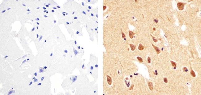 Phospho-PTEN (Thr383) Antibody (44-1062G) in Immunohistochemistry (Paraffin)
