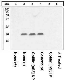 Phospho-Cofilin (Ser3) Antibody (44-1072G) in Western Blot