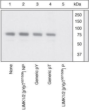 Phospho-LIMK1 (Tyr507, Thr508) Antibody (44-1076G) in Western Blot