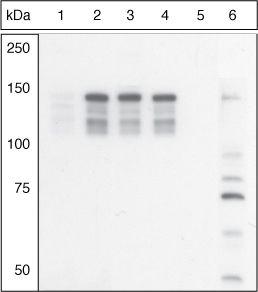 Phospho-MYLK (Ser1760) Antibody (44-1085G)