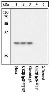 Phospho-CK2 beta (Ser209) Antibody (44-1090G) in Western Blot