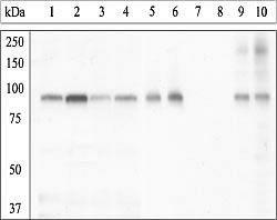 Phospho-GYS1 (Ser641, Ser645) Antibody (44-1092G) in Western Blot