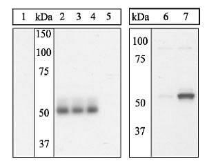 Phospho-ETS1 (Ser251) Antibody (44-1107G)