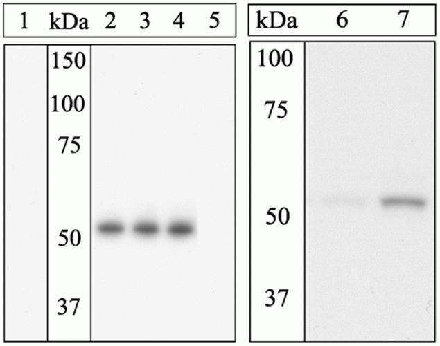 Phospho-ETS1 (Ser282) Antibody (44-1109G) in Western Blot