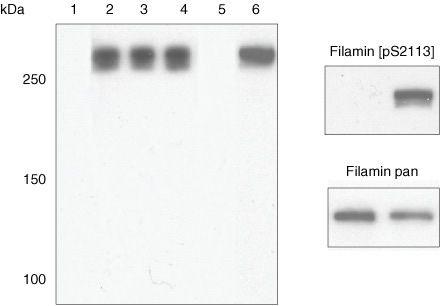 Phospho-Filamin 2 (Ser2113) Antibody (44-1120G)