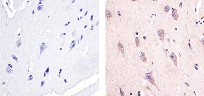 Phospho-AMPK alpha-1,2 (Thr172) Antibody (44-1150G) in Immunohistochemistry (Paraffin)