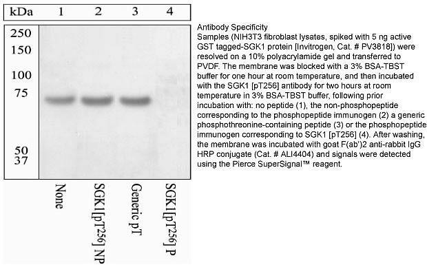 Phospho-SGK1 (Thr256) Antibody (44-1260G) in Western Blot
