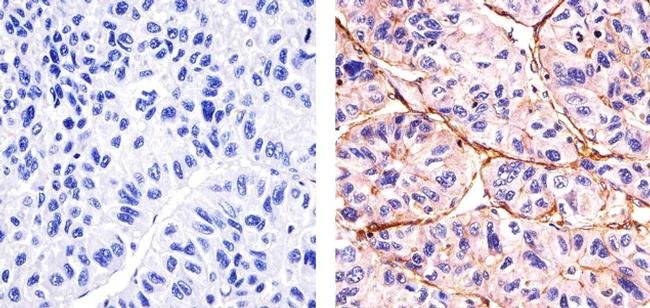 Phospho-SGK1 (Thr256) Antibody (44-1260G) in Immunohistochemistry (Paraffin)