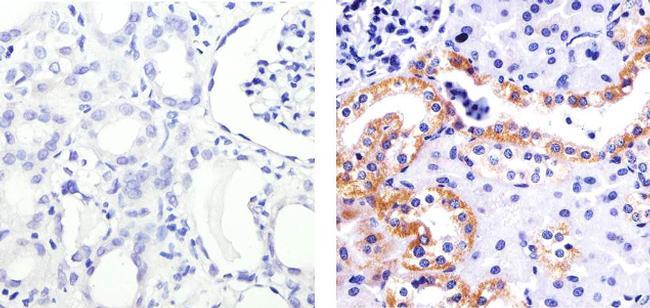 Phospho-SGK1 (Ser422) Antibody (44-1264G) in Immunohistochemistry (Paraffin)