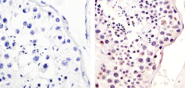 Phospho-MDM2 (Ser166) Antibody (44-1400G) in Immunohistochemistry (Paraffin)