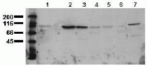 beta Catenin Antibody (44206M)