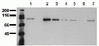 beta Catenin Antibody (44207M)