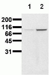 Phospho-beta Catenin (Ser86) Antibody (44210M)