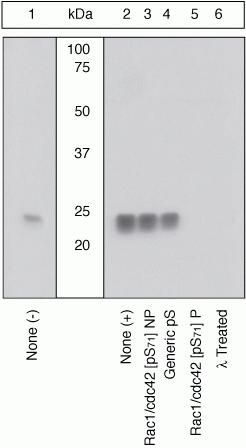 Phospho-RAC1/CDC42 (Ser71) Antibody (44-214G) in Western Blot