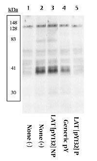 Phospho-LAT (Tyr132) Antibody (44-224) in Western Blot