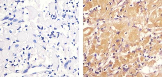 Phospho-ZAP70 (Tyr292) Antibody (44-230G) in Immunohistochemistry (Paraffin)