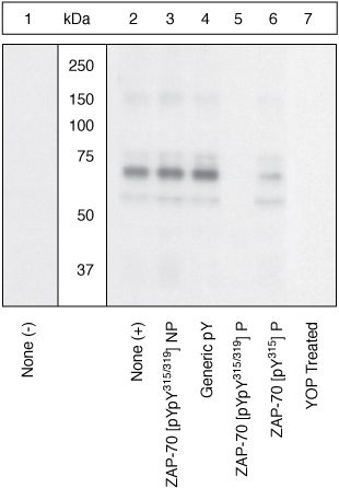 Phospho-ZAP70 (Tyr315, Tyr319) Antibody (44-232G)