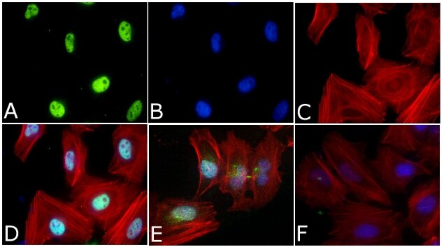 Phospho-SMAD2 (Ser465, Ser467) Polyclonal Antibody