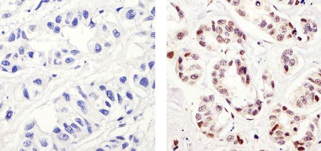 Phospho-c-Fos (Thr232) Antibody (44-280G) in Immunohistochemistry (Paraffin)