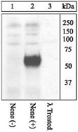 Phospho-c-Fos (Thr325) Antibody (44-281G) in Western Blot
