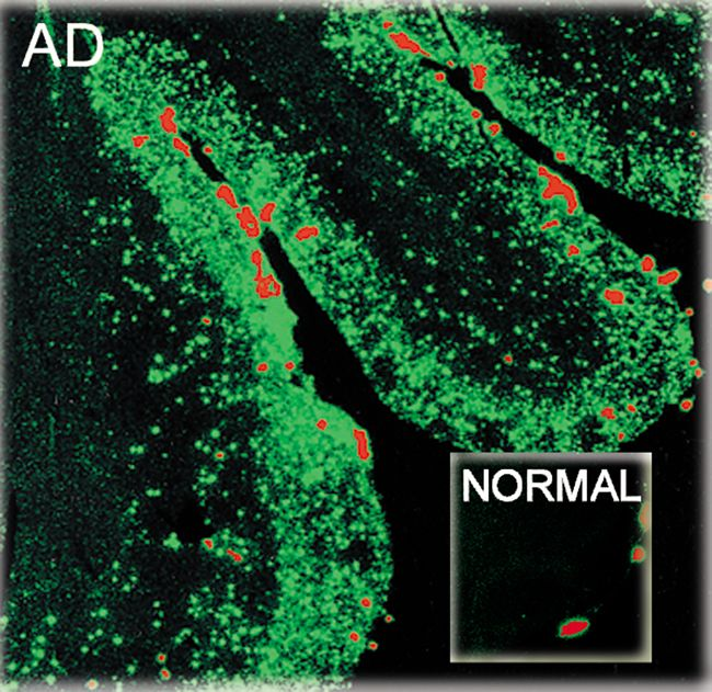 beta Amyloid (1-40) Antibody (44-348A) in Immunofluorescence