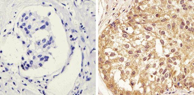 Phospho-STAT1 (Tyr701) Antibody (44-376G) in Immunohistochemistry (Paraffin)