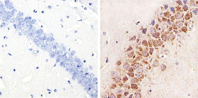 Phospho-STAT3 (Ser727) Antibody (44-384G)