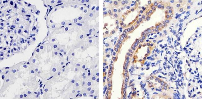 Phospho-MEK1 (Ser298) Antibody (44-460G) in Immunohistochemistry (Paraffin)