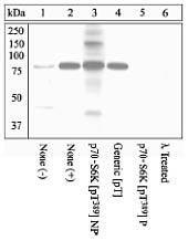 Phospho-c-Kit / CD117 pTyr703 Antibody (44-492)