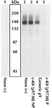 Phospho-c-Kit (Tyr730) Antibody (44-496G) in Western Blot