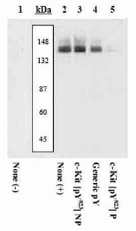 Phospho-c-Kit (Tyr823) Antibody (44-498G) in Western Blot