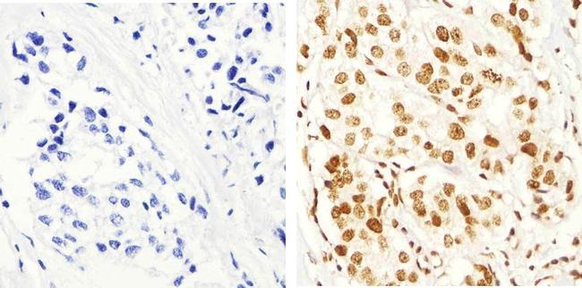 Phospho-IRS1 (Ser616) Antibody (44-550G) in Immunohistochemistry (Paraffin)