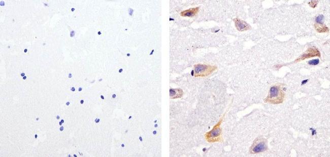 Phospho-SHP-2 (Tyr542) Antibody (44-554G) in Immunohistochemistry (Paraffin)