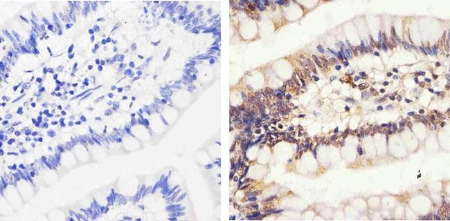 Phospho-Rb (Thr826) Antibody (44-576G) in Immunohistochemistry (Paraffin)