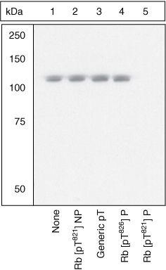 Phospho-Rb (Thr821) Antibody (44-582G) in Western Blot