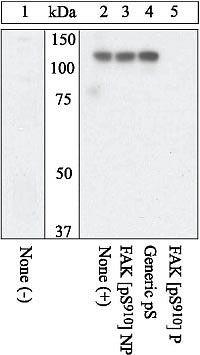 Phospho-FAK (Ser910) Antibody (44-596G) in Western Blot