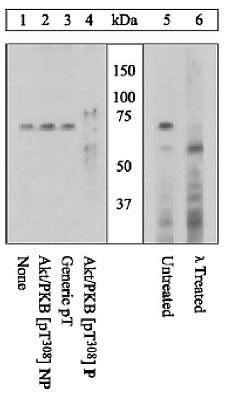 Phospho-AKT1 (Thr308) Antibody (44-602G) in Western Blot