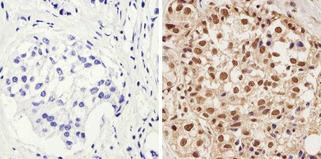 Phospho-AKT1 (Thr308) Antibody (44-602G) in Immunohistochemistry (Paraffin)
