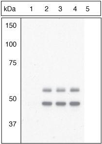 Phospho-GSK3 beta (Tyr216, Tyr279) Antibody (44-604G) in Western Blot